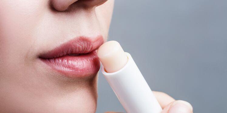 Fissure au coin des lèvres ou perlèche : comment la soigner rapidement ?