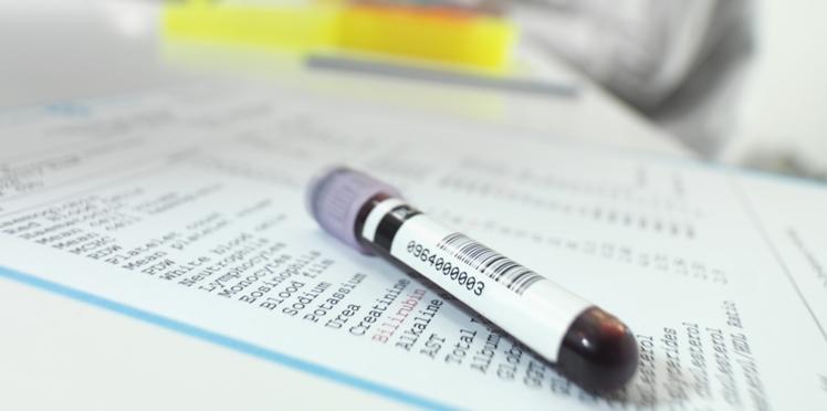 Glycémie : que révèle-t-elle ?