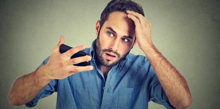 Vrai/faux : 6 idées reçues sur la calvitie