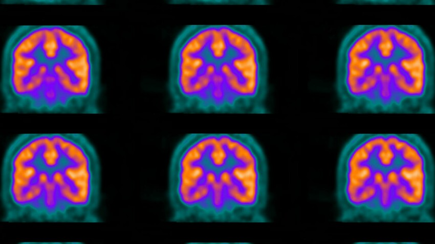 Scanner, IRM, échographie... Tout savoir sur l'imagerie médicale