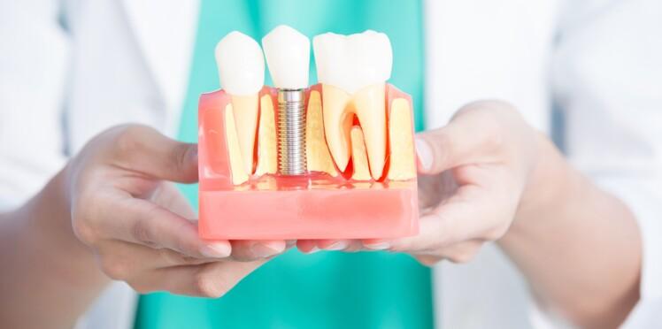 Vrai / Faux : 10 idées reçues sur les implants dentaires