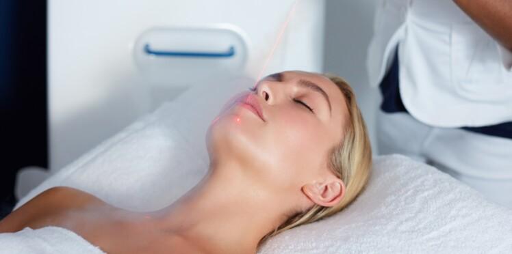 Les effets inattendus du laser en dermatologie