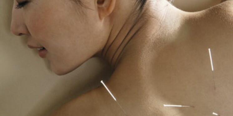 Cancer : l'acupuncture efficace ?