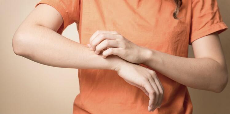 Bobos de la peau : ceux qu'il faut traiter avant l'été