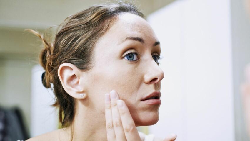 Le lupus, une maladie auto-immune