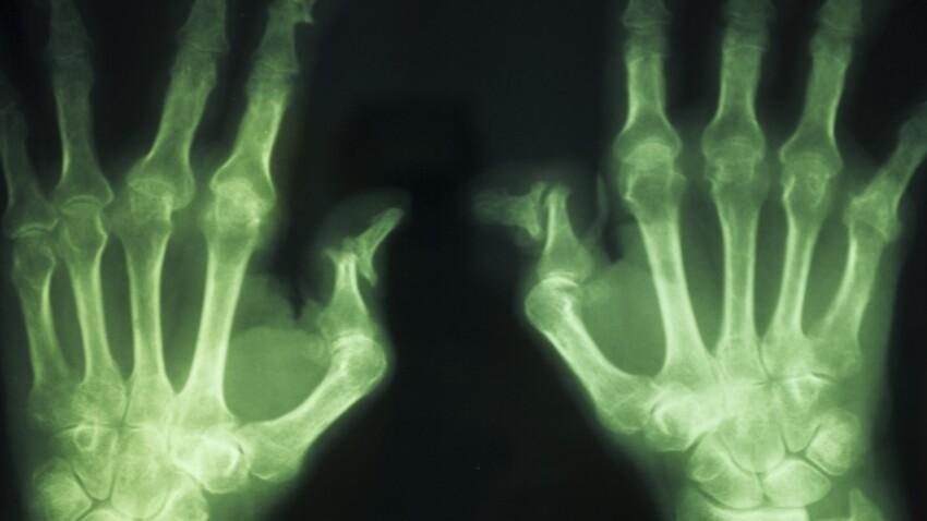 Maladie de Paget : symptômes et traitements