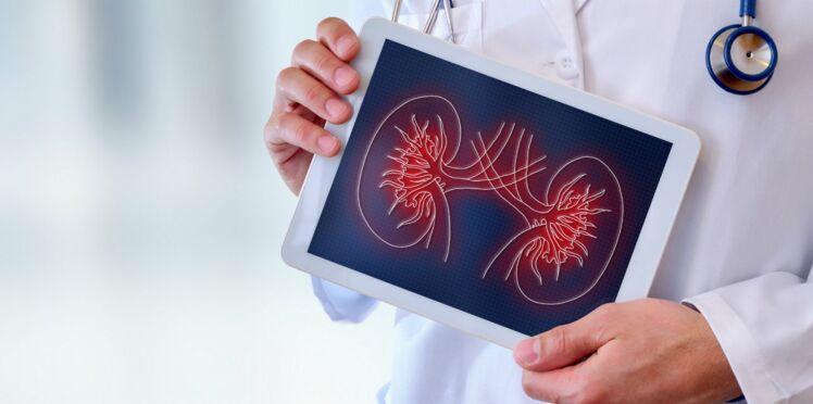 Maladies rénales : 4 choses à savoir sur le dépistage