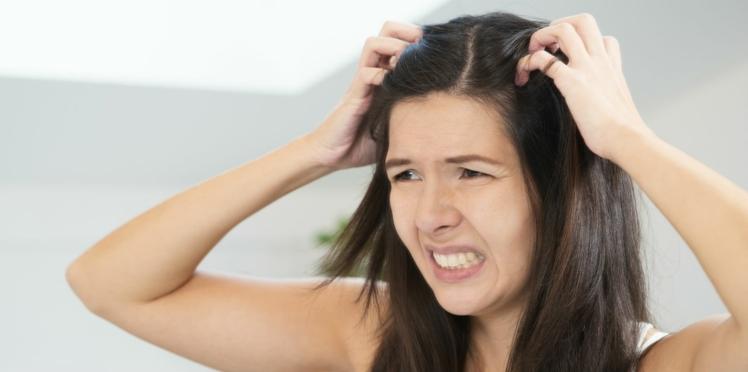 Nos conseils pour soulager les démangeaisons du crâne