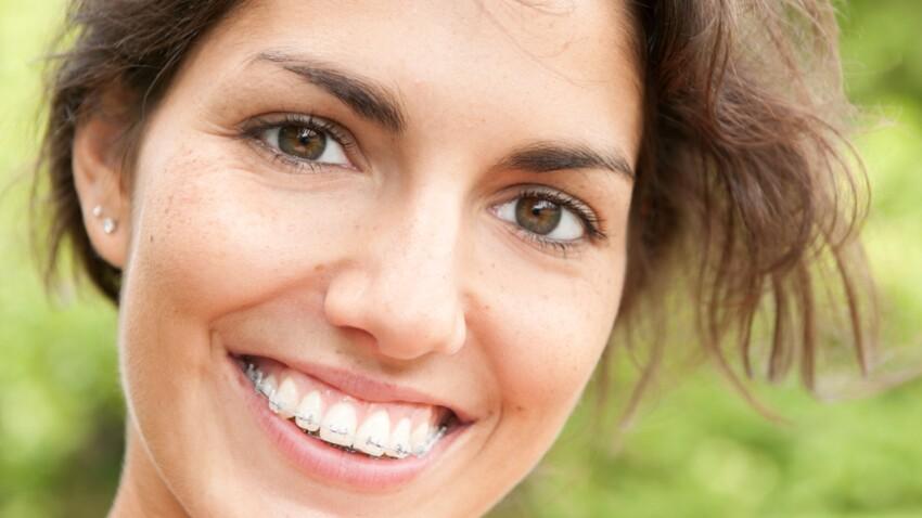 Orthodontie : pour les adultes aussi