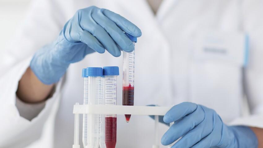 Protéine C réactive (CRP) : que signifie ce marqueur de l'inflammation ?