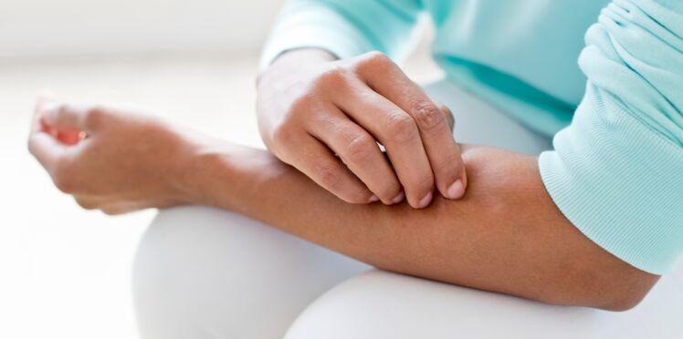 Psoriasis : comment le soigner naturellement ?