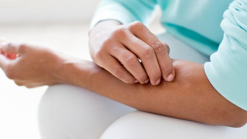 guérir psoriasis