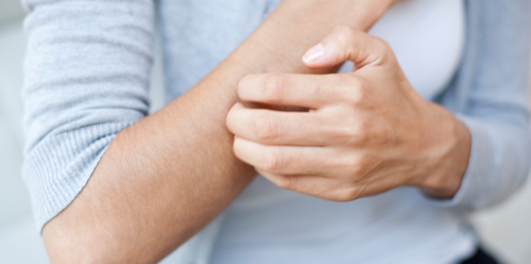 8 idées reçues sur le psoriasis