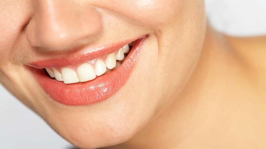 Remplacer une dent : quelles solutions ?