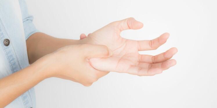 Rhumatisme psoriasique : une arthrite liée au psoriasis