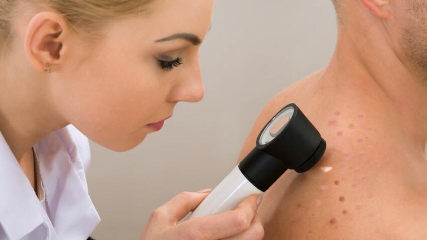 Taches sur la peau : est-ce un pityriasis versicolor ?