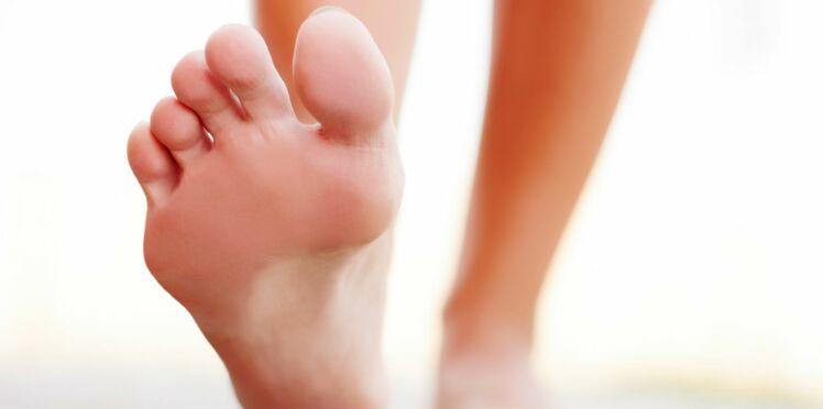 Transpiration des pieds : comment en venir à bout