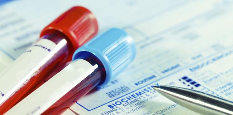 TSH : le dosage hormonal de la thyroïde