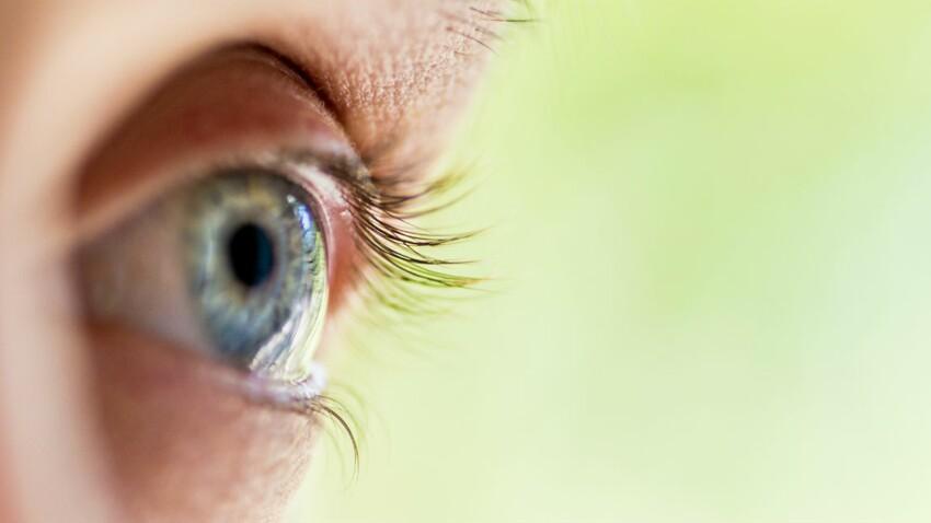 Uvéite: tout savoir sur cette inflammation de l'œil