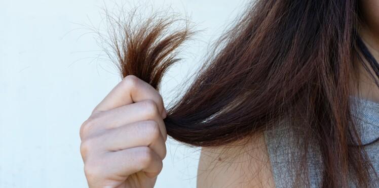 acheter pas cher avant-garde de l'époque luxe Cheveux : 4 astuces efficaces pour se débarrasser des ...