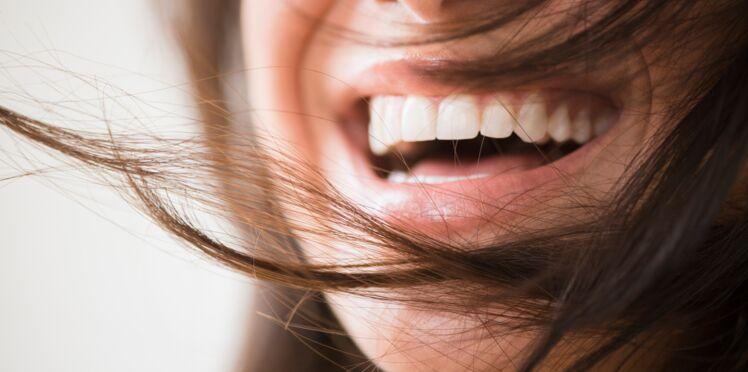 4 astuces naturelles pour que vos dents soient plus blanches
