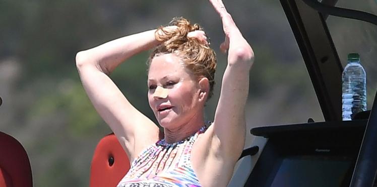 Melanie Griffith poste un cliché choc de son visage pour alerter contre le cancer de la peau