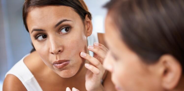 imperfection visage femme