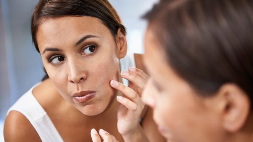 5 bons réflexes contre les imperfections du visage