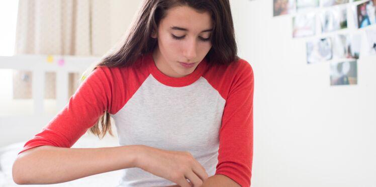 Psoriasis : quels sont les différents traitements ?