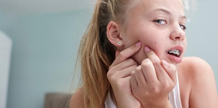 Peut-on se faire vacciner contre l'acné ?
