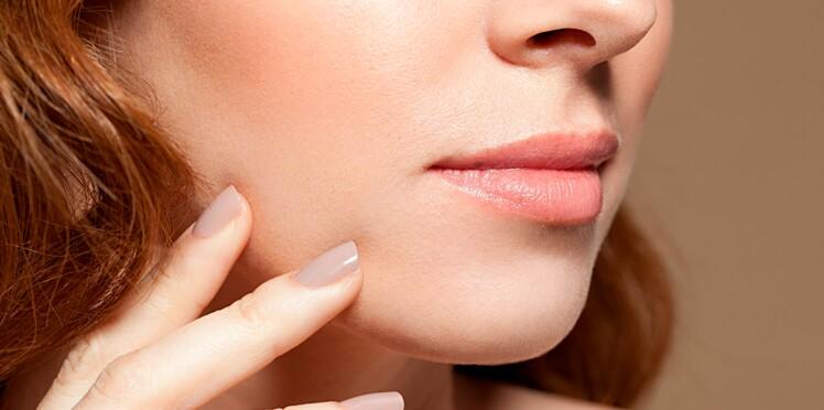 Duvet sur les joues : comment m'en débarrasser ou l'atténuer ?