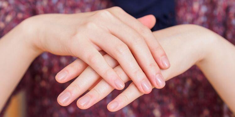 Taches blanches sur les ongles : est-ce un manque de calcium ?