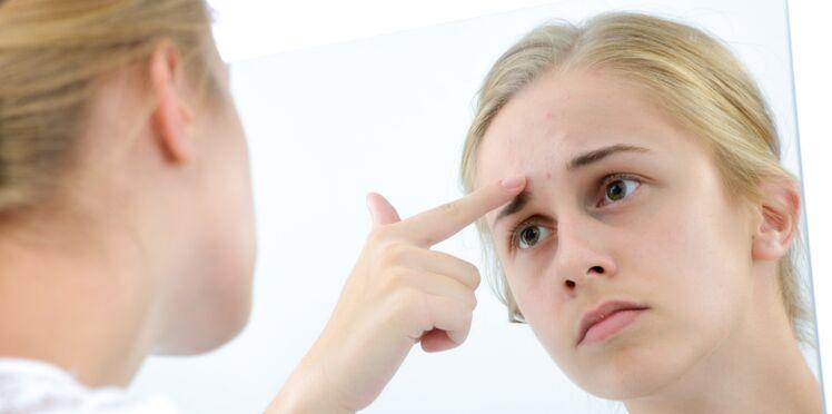 Mon ado à de l'acné : 5 pistes pour l'aider à vivre avec