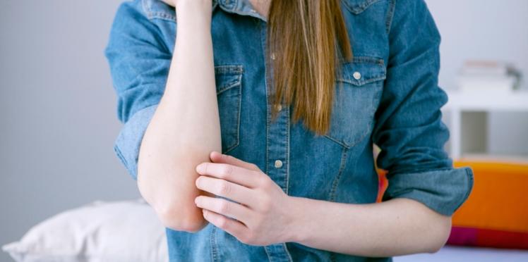 Psoriasis : comment reconnaître cette maladie de peau ?