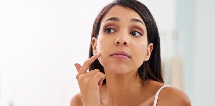 Les astuces anti-acné des filles de la rédaction