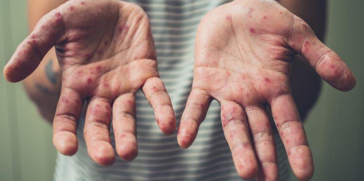 Épidémie de rougeole : comment savoir si vous êtes protégé ?