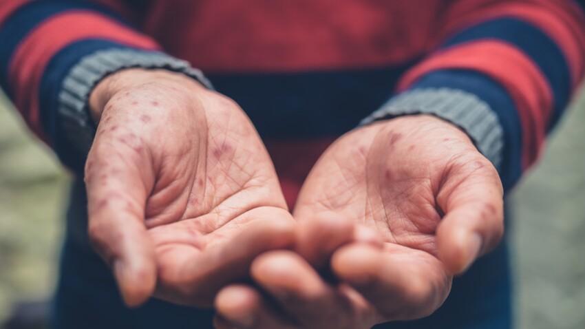 Varicelle chez l'adulte : comment reconnaître les symptômes ?