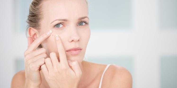 Pourquoi a-t-on plus d'acné en hiver et comment y remédier?