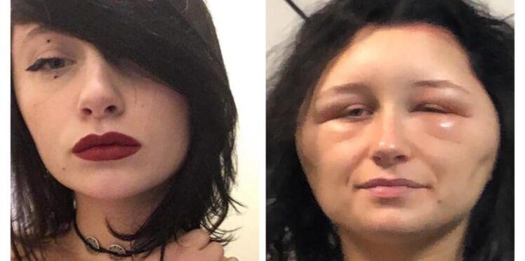Défigurée, Estelle 19 ans témoigne et alerte sur les risques d'allergie aux colorations