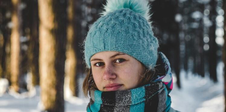 3996c6be26d6 Allergie au froid   peut-on être allergique à l hiver     Femme ...