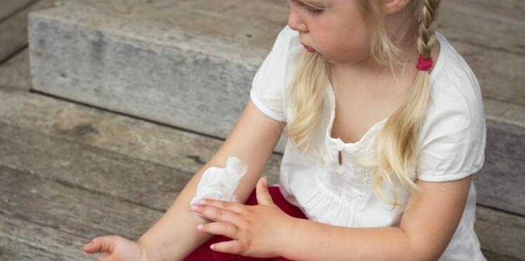 7 traitements naturels contre l'eczéma
