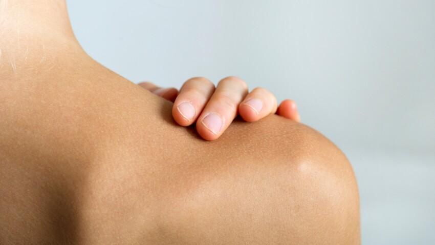 3 astuces qui marchent vraiment pour éliminer les boutons dans le dos