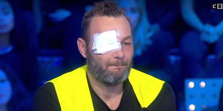 """Le gilet jaune qui a perdu un oeil témoigne chez Thierry Ardisson : """"J'ai tellement la haine"""""""