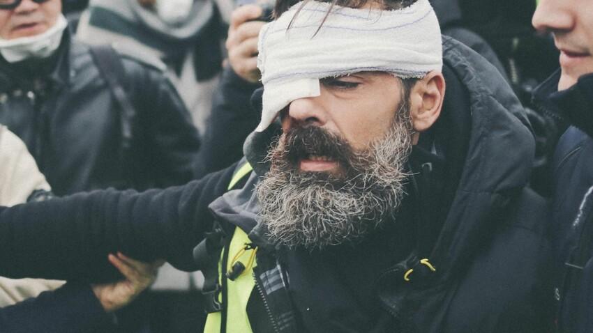 Vidéo - Le gilet jaune Jérôme Rodrigues blessé à la tête pendant qu'il filmait en direct la manifestation