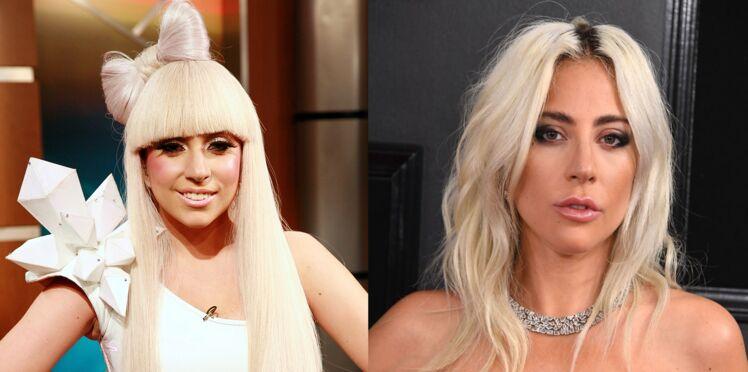 Lady Gaga : son évolution physique en images