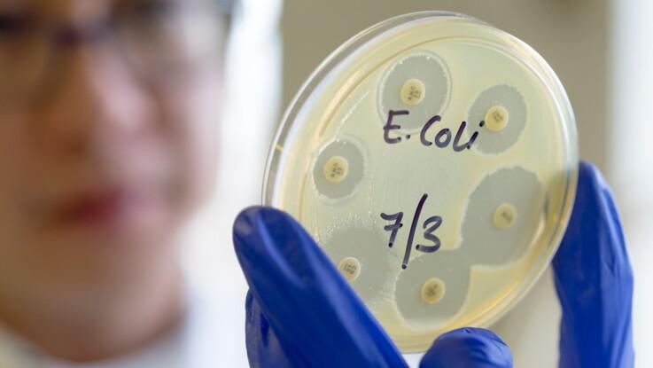 Bactérie E. Coli (Escherichia coli) : quels sont les symptômes et que risque-t-on ?