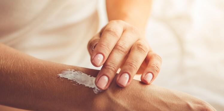 Alzheimer, ostéoporose... : la peau sèche pourrait être un symptôme de maladies liées à l'âge