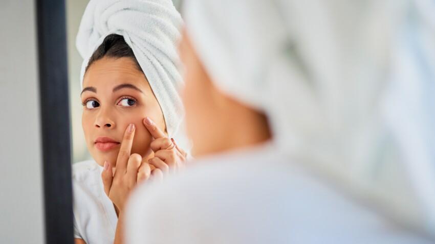 Peau sèche, terne ou sensible : les solutions pour se débarrasser des imperfections
