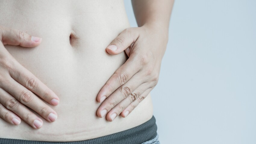 Une célèbre Youtubeuse confie être atteinte du syndrome des ovaires polykystiques : de quoi s'agit-il ?