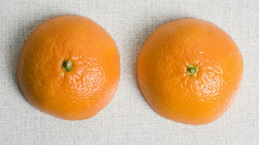 Macromastie : qu'est-ce que cette maladie qui fait pousser les seins sans fin ?